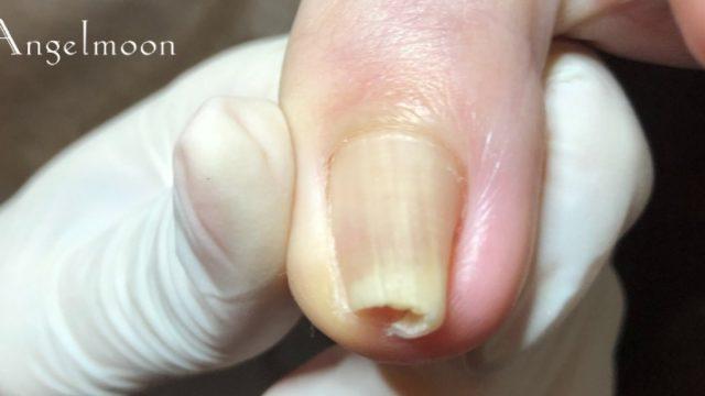 【実録】巻き爪が酷くて痛みを超えた先には体の不調がくる