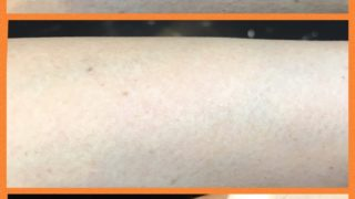 手の年齢は隠せない、、、手遅れになる前に|肌断食できれいを保つ方法