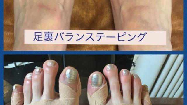 足の痛みにテーピング|エステサロンをオープンするのに大事なメニュー選び